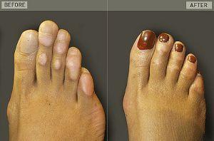 Toes  cinderella surgery