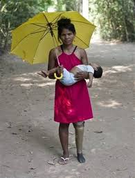prosthetics Cambodian Miss Landmine